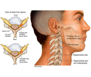 illustration, cervical spine, vertebrae, disc, problems